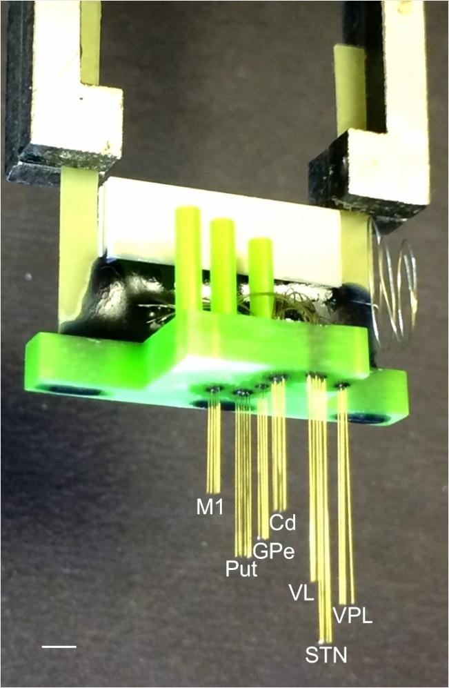 stereotaxic chirurgie voor implantatie van micro elektrode arrays de language=Dutch yyuwp